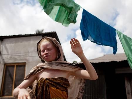 Tanzania's albinos under siege