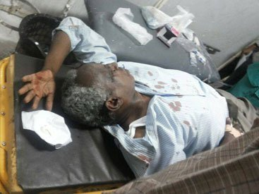 The editor in chief of Al-Tayyar Osman Mirghani at Khartoum hospital following an assault by masked gunmen on 19 July 2014 (Photo Al-Tayyar)