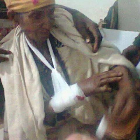 Image - Elderly nun badly beaten by government forces. Name is not identified. Credit : Dawit Solomon page