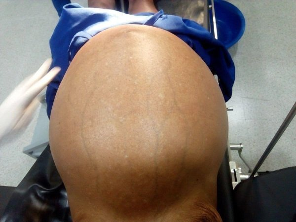 Tumor _ surgery _ Ethiopia _ 26 kg