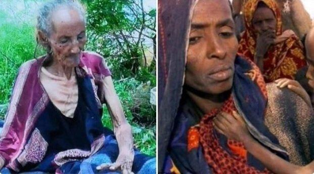 Wollo Starvation _ Ethiopia